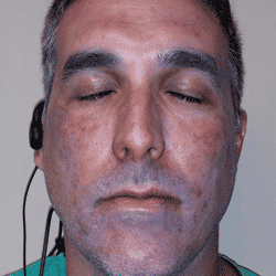 Day-1-post-chemical-peel-of-Lombard-plastic-surgeon