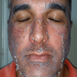 Days-3-4-post-chemical-peel-of-Lombard-plastic-surgeon