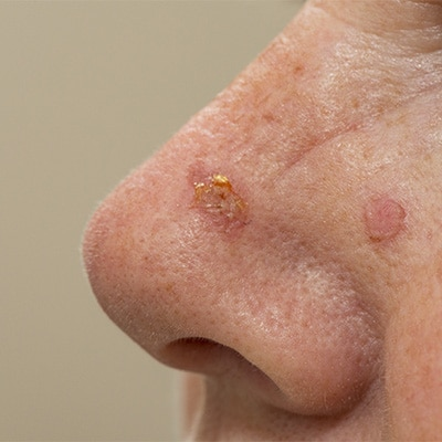 actinic keratosis on the nose