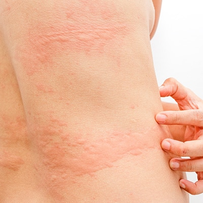 hives on the body
