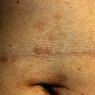 lichen planus on the skin