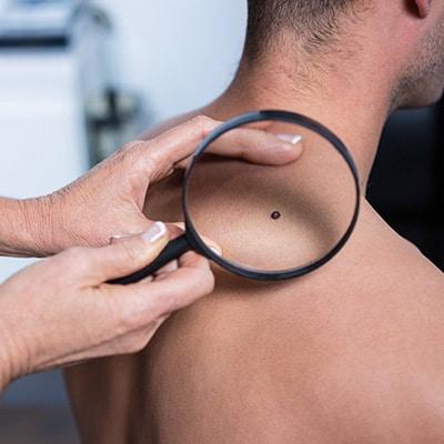 melanoma on the shoulder and back