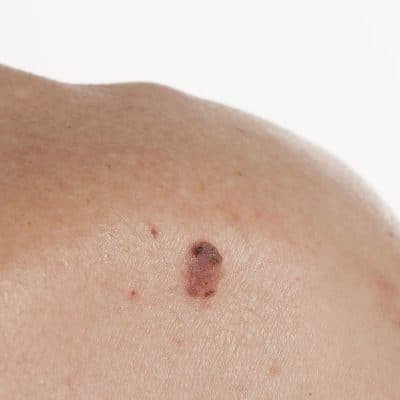 squamous cell on the skin