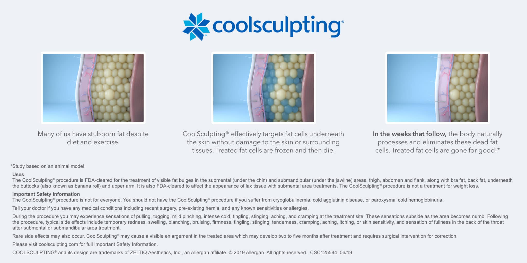 Coolsculpting illustration - How it works