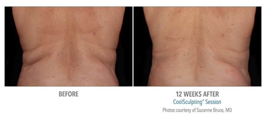 Coolsculpting - Before and 12 weeks after