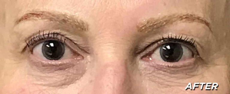 Debi Close up - After