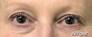 Debi Close Up - Before