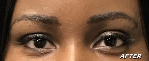 Essence Close Up - After