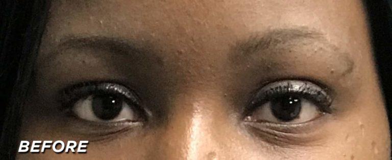 Essence Close Up - Before