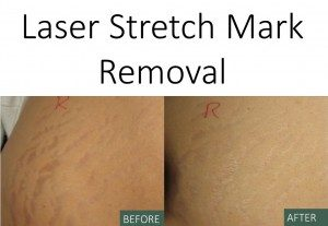 Laser Stretch Mark Removal - Before and After